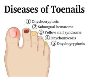 Sterke nagels - aandoeningen nagels
